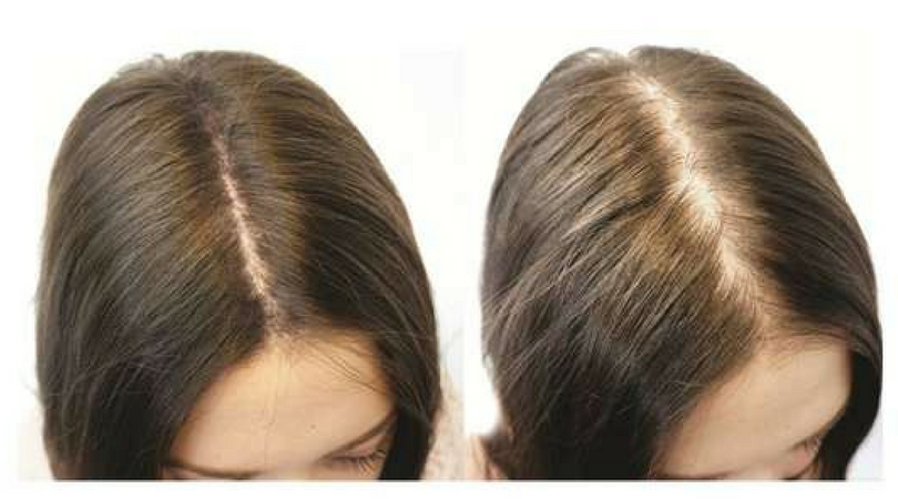 Female Pattern Thinning Treatment For Women | Clive Hair ...